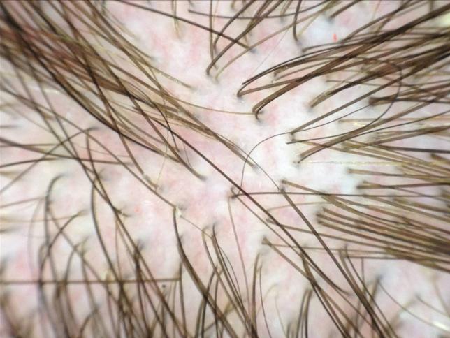 La dermoscopia nei pazienti con tricodinia può mostrare dilatazione dei vasi