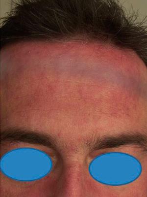 Presenza di intenso eritema sormontato da fine desquamazione di colorito giallastro nelle aree seborroiche del volto