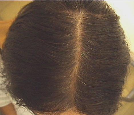 Caduta dei capelli - Telogen effluvium acuto in post-partum