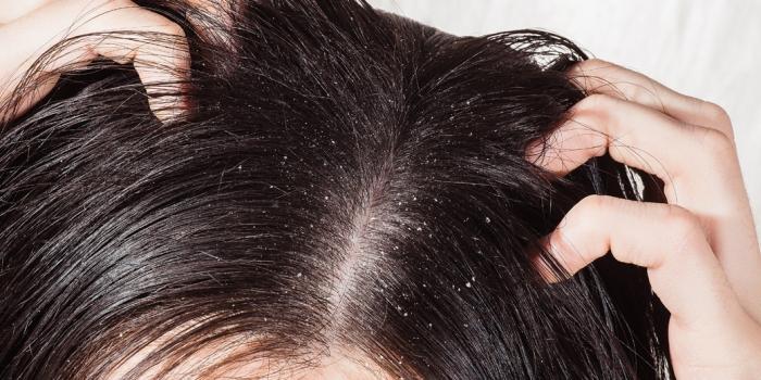 Forfora e dermatite seborroica