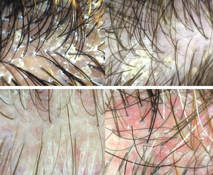 Segni tricoscopici di dermatite seborroica