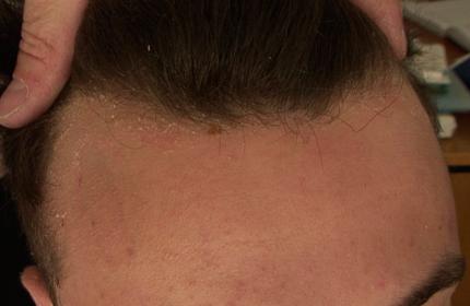 A livello della regione anteriore di attaccatura dei capelli, presenza di squame giallastre scarsamente adese alla cute sottostante eritematosa
