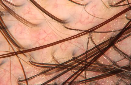Alla tricoscopia si apprezzano molteplici anse capillari di aspetto reticolo-alveolare a sede inter e peri-follicolare